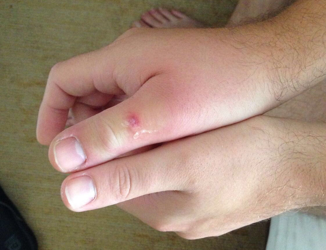 Maflin posted this picture of his thumbs on Twitter